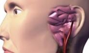 渗出性中耳炎的四大症状