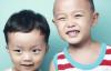 儿童会因为这个7个原因患上中耳炎